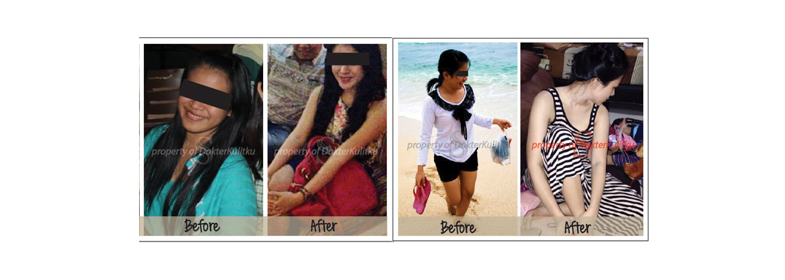 [Kation] Foto before after