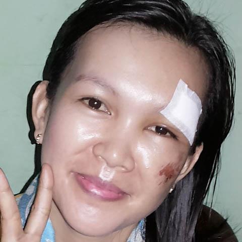menghilangkan bekas luka dengan suntik putih