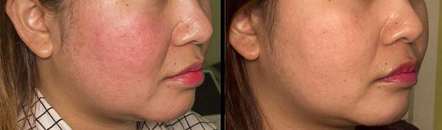 [Diode] Mengobati wajah merah dan pembuluh darah di muka