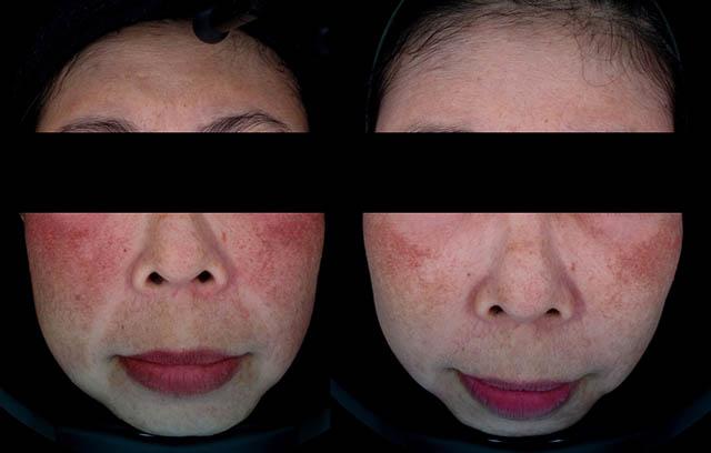 [Diode] Mengobati Freckles dan Flek