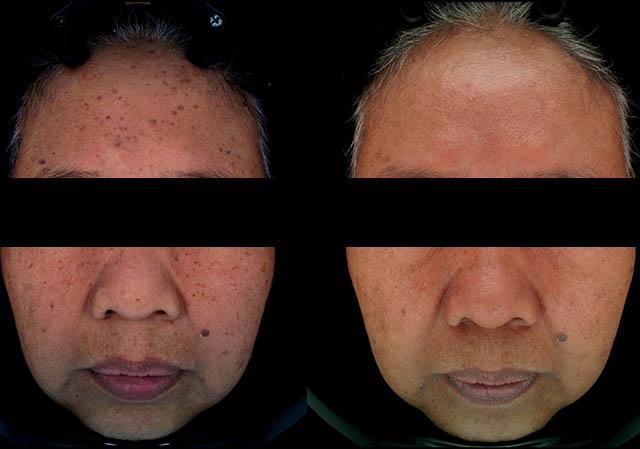 [Diode] Untuk mengobati masalah kulit menua
