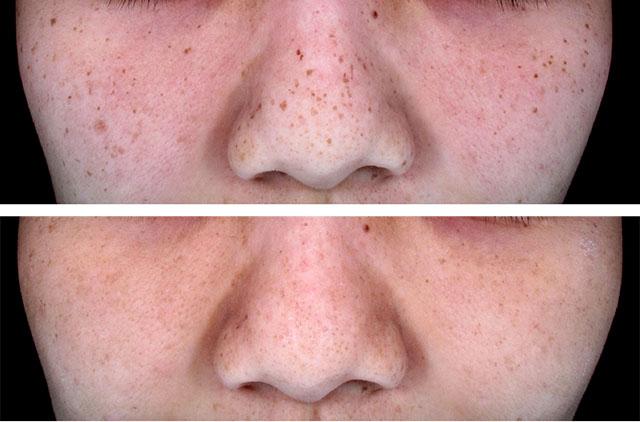Menghilangkan Freckles/sun sproeten